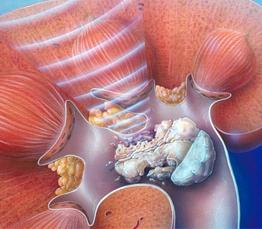 litotripsia extracorporea